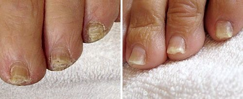Onychomycosis Treatment Courtesy of Robin Sult, R.N